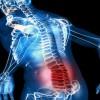 Los analgésicos comunes no alivian el dolor de espalda, según un estudio